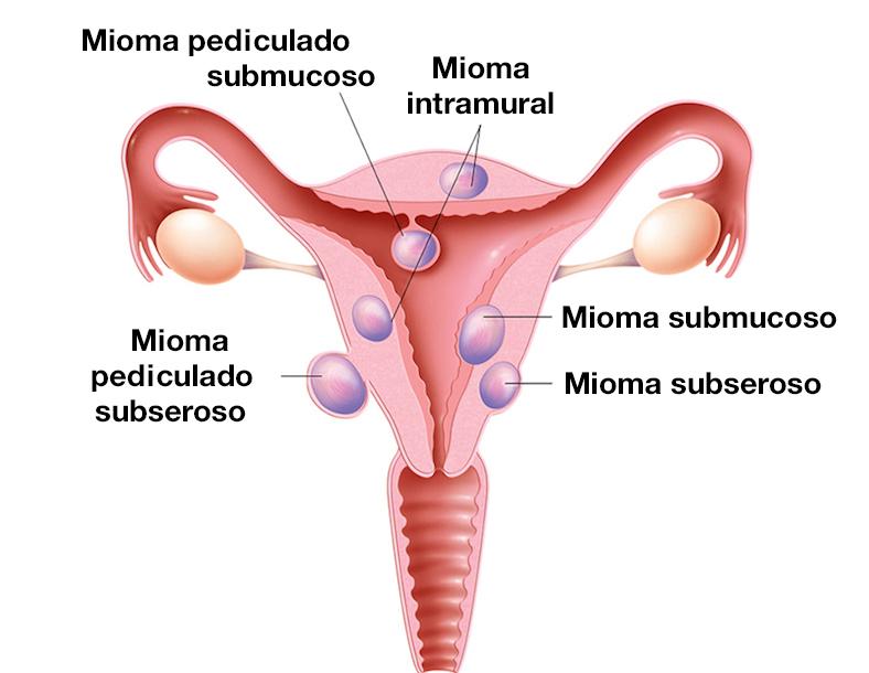Diferentes tipos de miomas uterinos