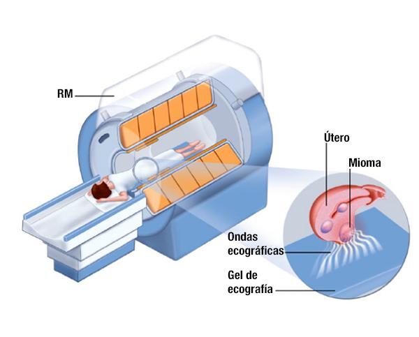 Cirugía por ultrasonido guiada por resonancia magnética