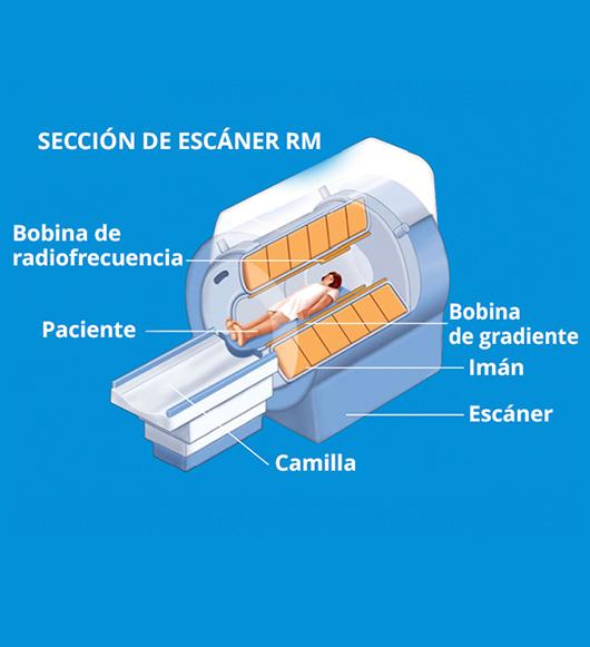 Diagnóstico por resonancia magnética nuclear