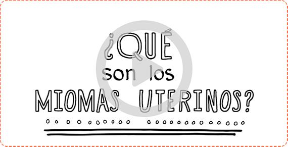 ¿Qué son los miomas uterinos?
